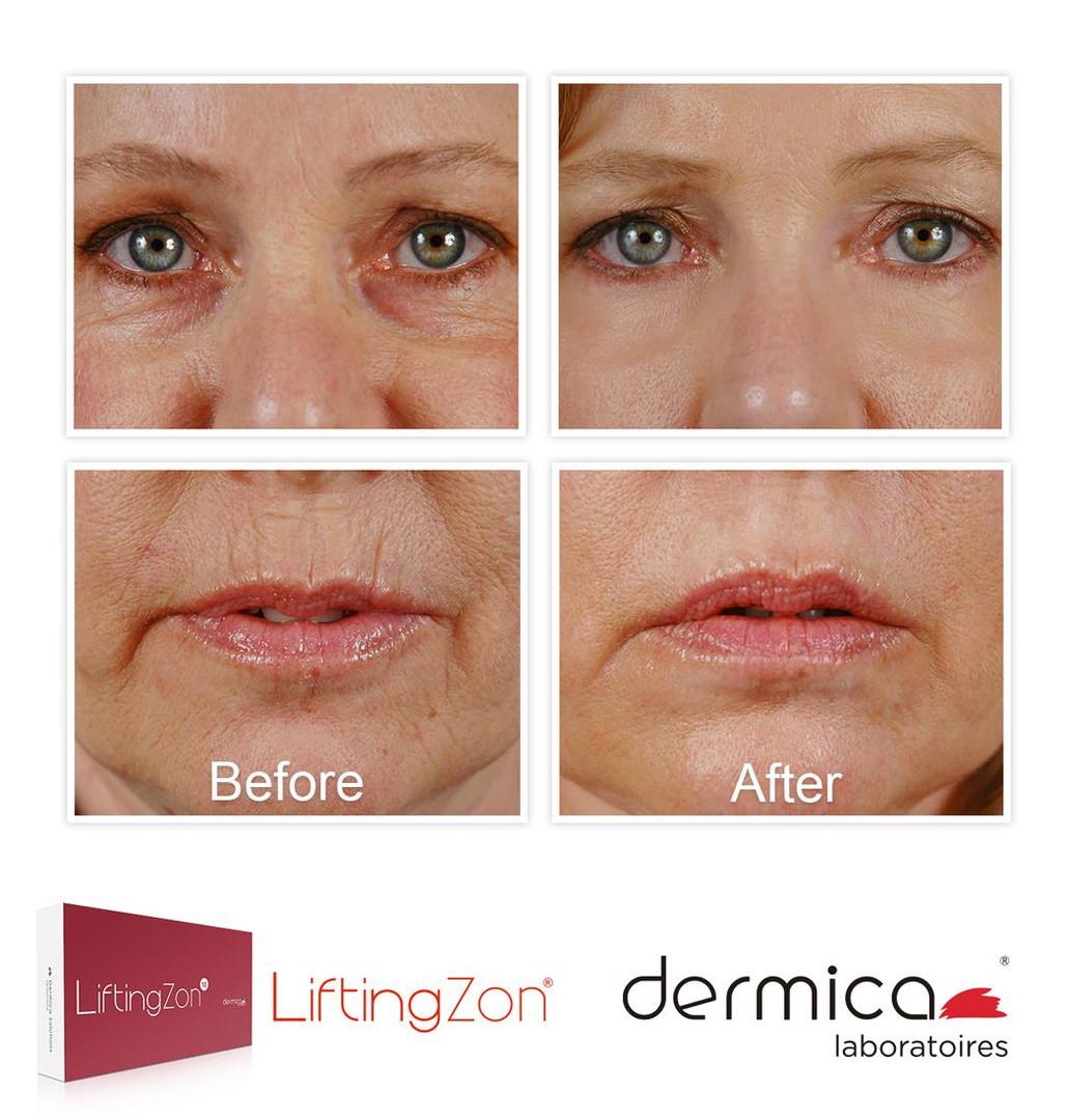 Dermica microneedling voor&na 2.jpg