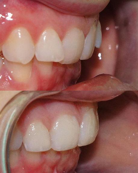 Braces + Teeth = 1 Perfect Smile #orthod