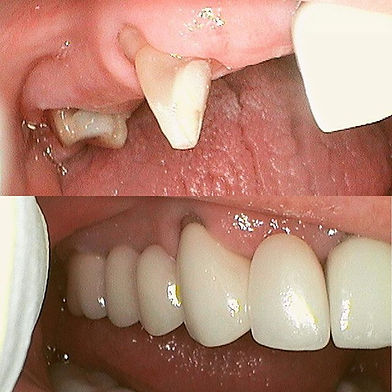 Missing tooth problems_ Building a Denta