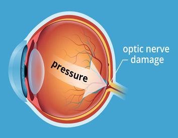 glaucoma-pressure-354X275.JPG