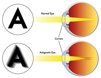 astigmatismVG.jpg