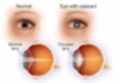 cataract (1)thumb.VG.jpg