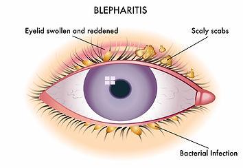 Blepharitis.jpg
