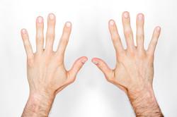 Top of Hands