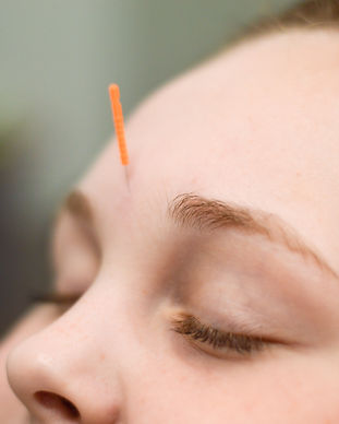 Relaxed face with acupuncture needle inserted on the forehead.