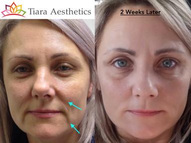 Mid-Facial Volumising