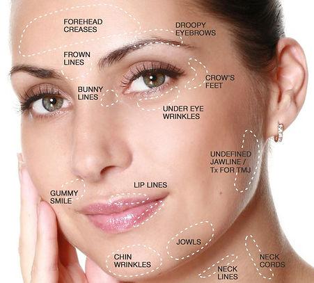 Botox Treatment Areas