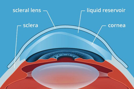 Scleral Contacts Helping Patients See