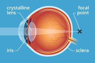 presbyopia-330x220.jpg