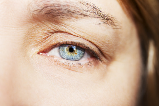 Get rid of droopy eye lids with out surgery.