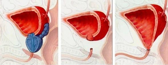 Prostatectoma radical
