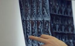 Lumbar Spine MRI