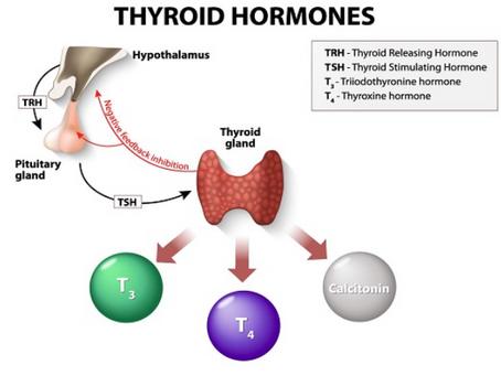 Hashimoto's thyroiditis: a primer