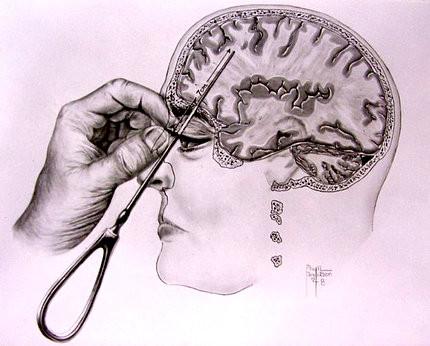 brain picking
