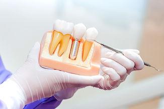 NIB Preferred Provider Sydeny Dentist Experteeth Dental Implant