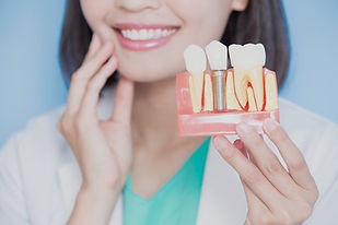 Sydney Dentist Dental Implant Experteeth Dental Group
