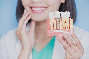 Sydney Dentist Dental Implant Experteeth Dental Group