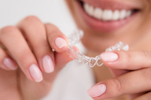 Sydney Dentist Invisalign Experteeth Dental Group