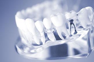 NIB Preferred Provider Sydeny Dentist Experteeth Dental Root Canal