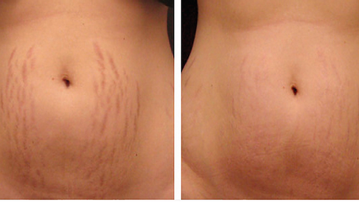 before-and-after-stretch-marks.webp