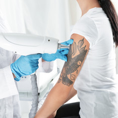 TATTOO  REMOVAL | REVISION
