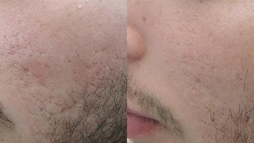 Cutera_Inc_Secret_Acne_Scar_Treatment_ed