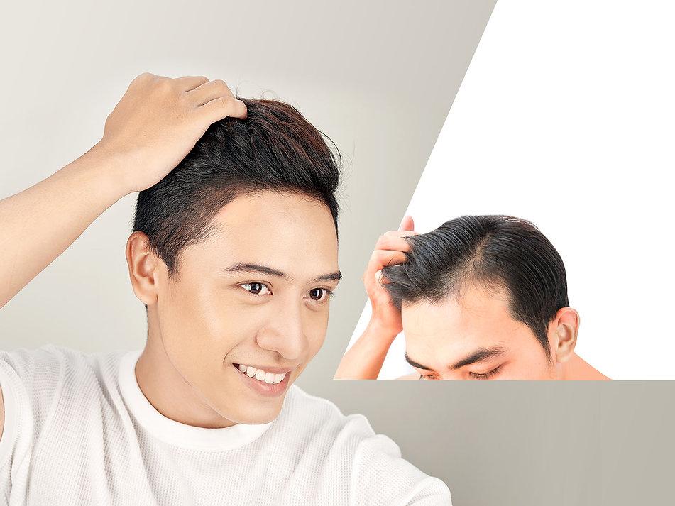 植髮.jpg