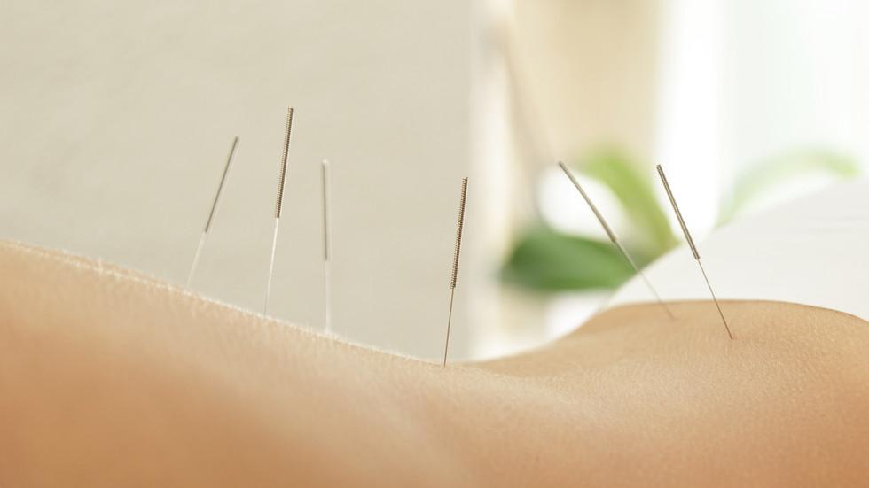 acupuncture 04
