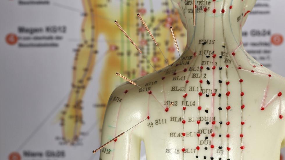 acupuncture 01.
