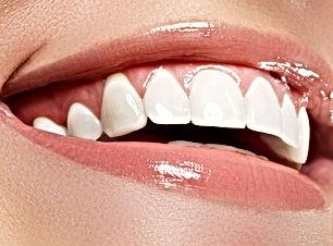 Zoom-Teeth-Whitening.jpg.optimal.jpg
