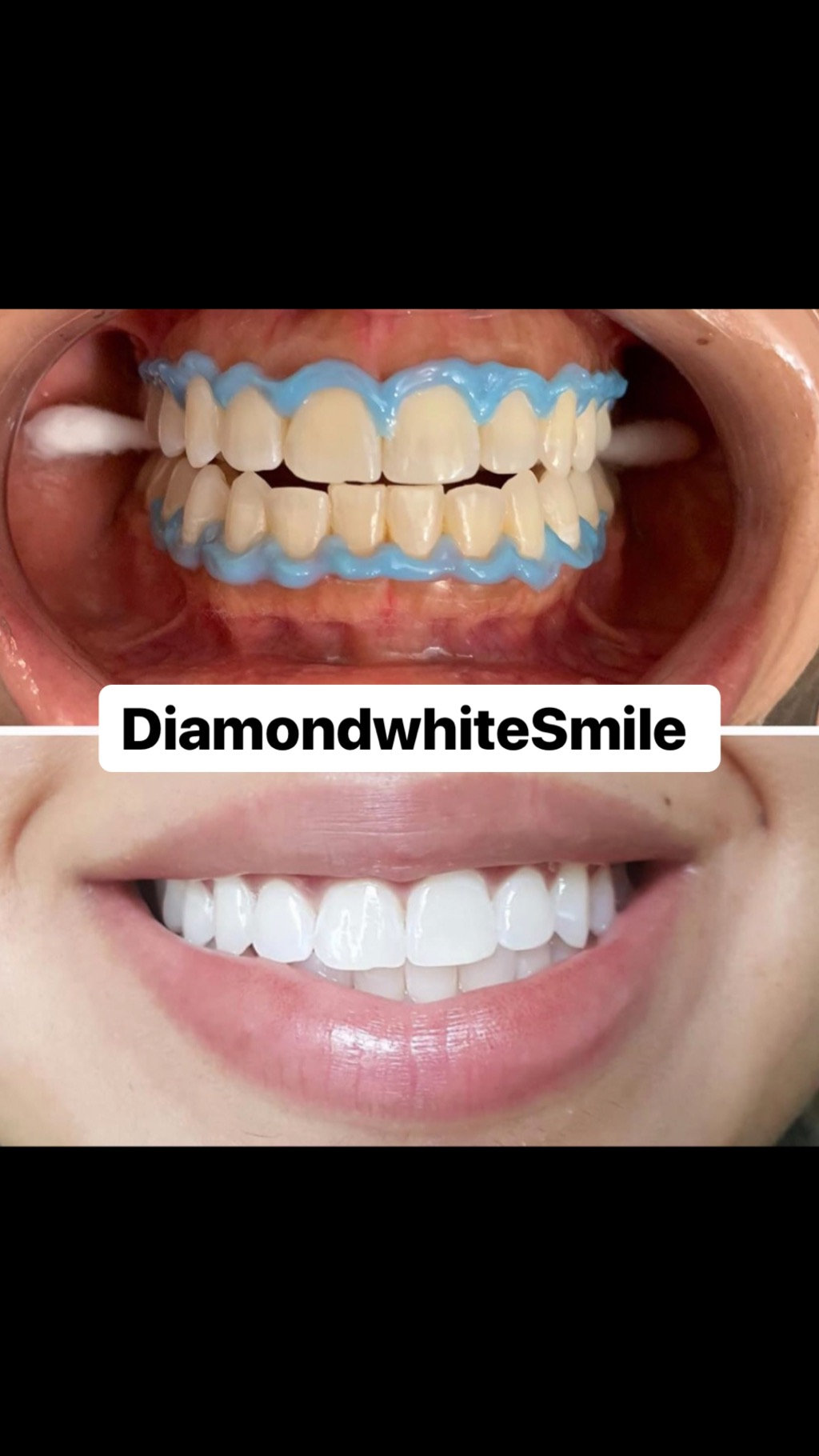 Teeth Whitening Touch Up