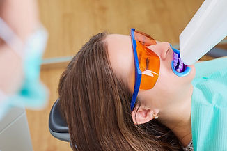T_0318_dental-whitening_590064358.2e16d0