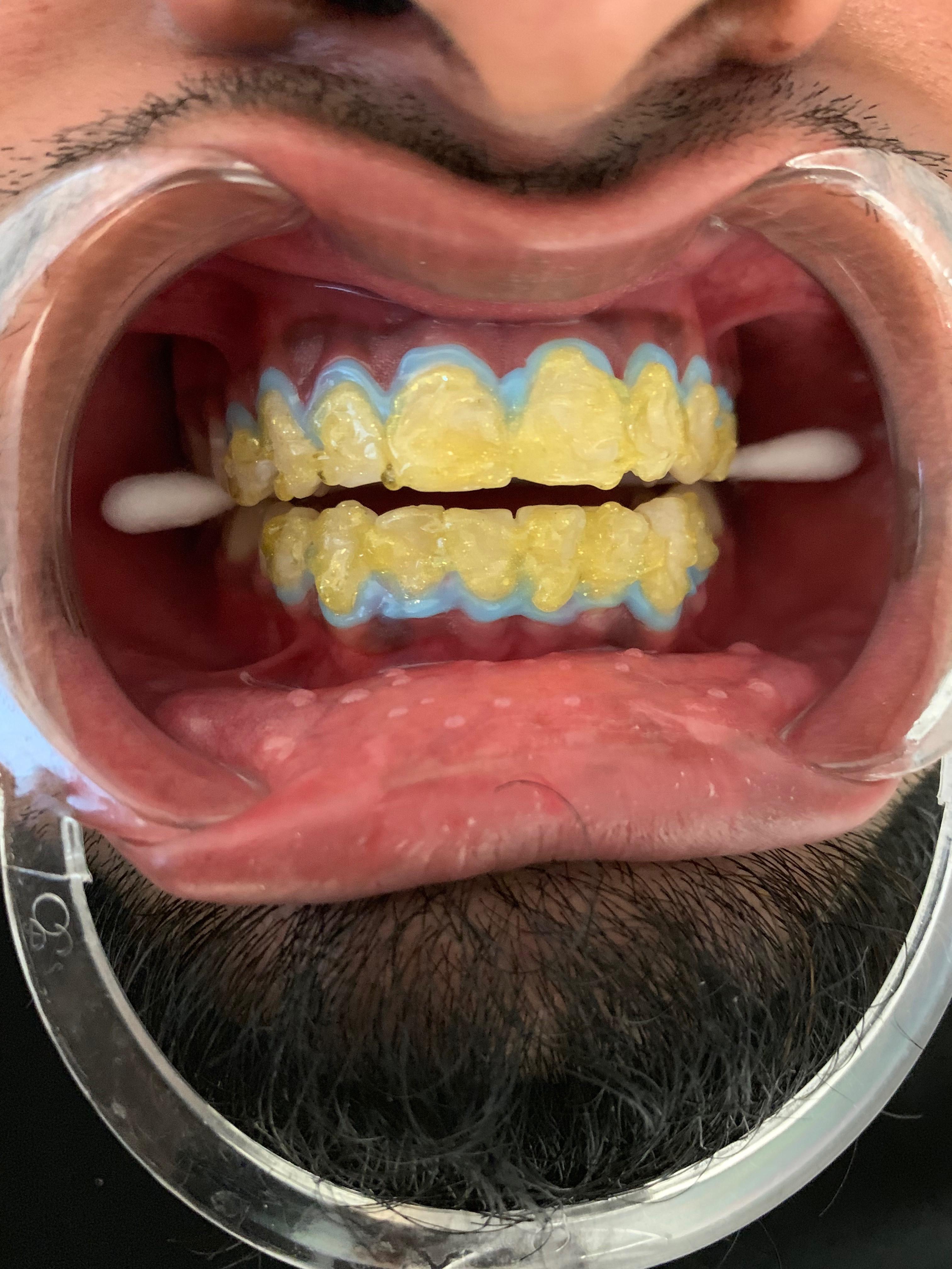 Teeth Whitening Gold Treatment