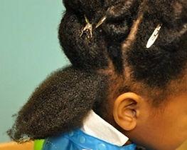 Vign_traitement_anti-poux_cheveux_afros_