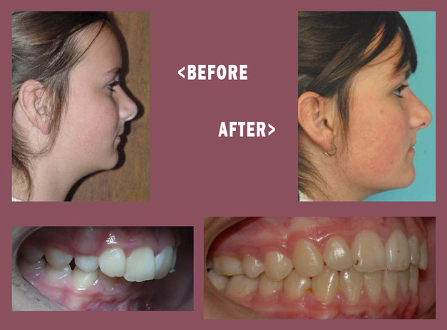 Before-and-After-Mara-Side-6.jpg