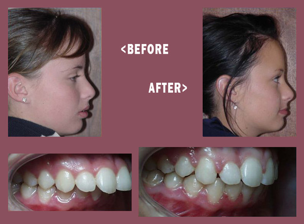 Before-and-After-Mara-Side-2.jpg