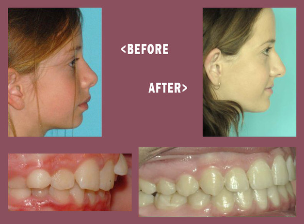 Before-and-After-Mara-Side-4.jpg