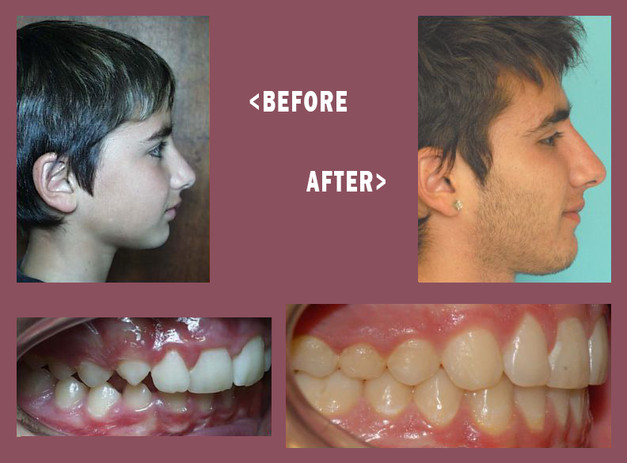 Before-and-After-Mara-Side-8.jpg