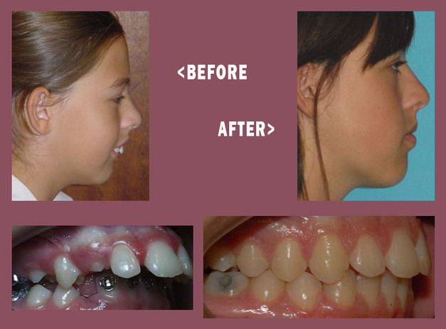 Before-and-After-Mara-Side-1.jpg