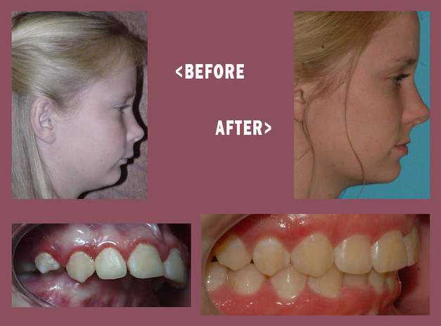 Before-and-After-MARA-12.jpg