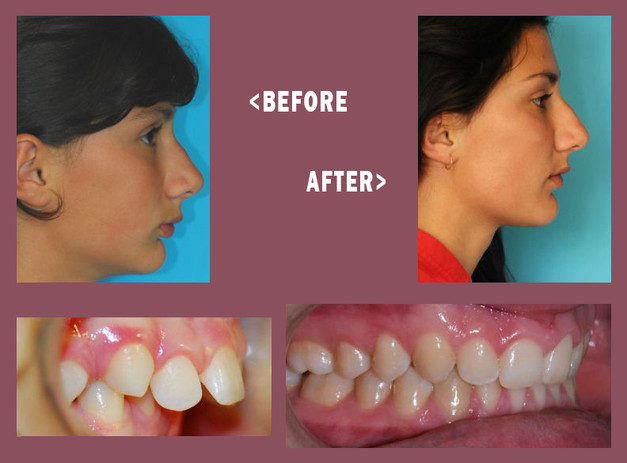 Before-and-After-Mara-Side-3.jpg