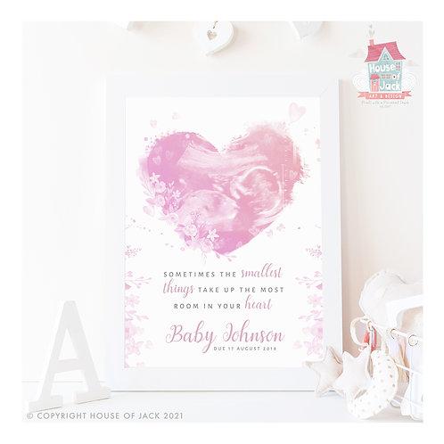 Ultra Sound Heart Personalised Art Print