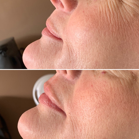 Client wanted more volume to her previously full lips. We used 1 syringe of Juvederm Ultra Plus