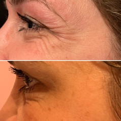 Client received 7 units of Botox to crows feet