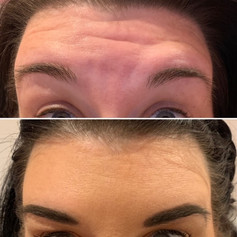 Client received 7 units of Botox
