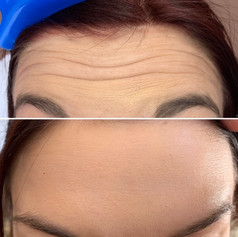 Client received 8 units of Botox to her forehead