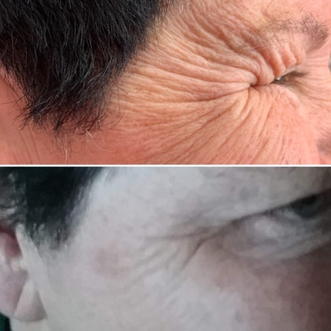 Client received 9 units of Botox to crows feet
