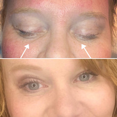 Filled the tear troughs using the cannula technique and 1 syringe of Juvederm Volbella