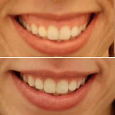 Gummy smile
