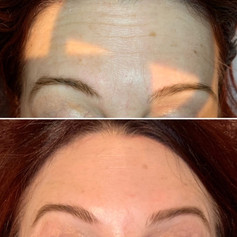 Client achieved this smooth look using only 7 units of Botox